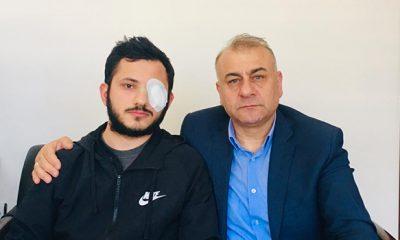 Samsun'da SASKİ çalışanı darp edildi