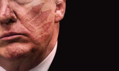 Trump'ın yüzünde tokat izleri