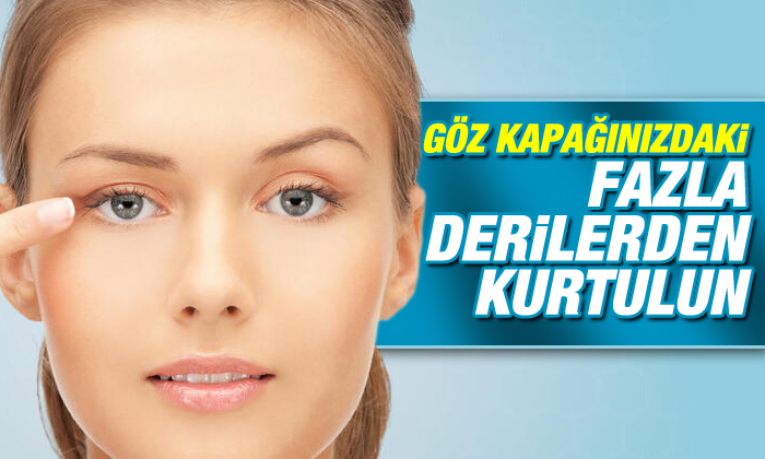 Göz Kapağı Estiği Ameliyatları