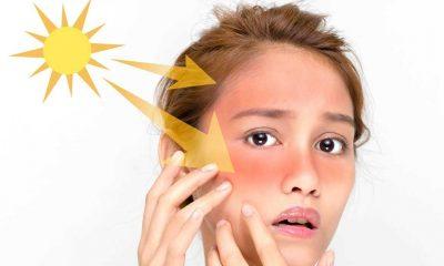 Aşırı sıcaklarda cildinize dikkat edin