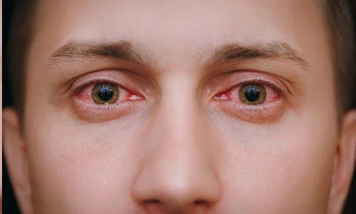 Göz alerjisi nedir, nasıl tedavi edilir?